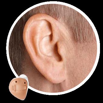 центр восстановления слуха в спб